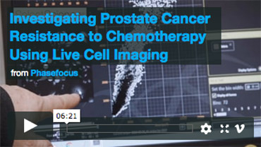 Investigating Prostate Cancer Resistance to Chemotherapy